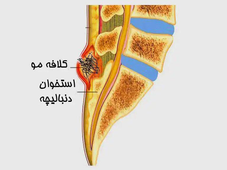 دکتر حسین شقایق - بیماری پیلونیدال یا کیست مویی
